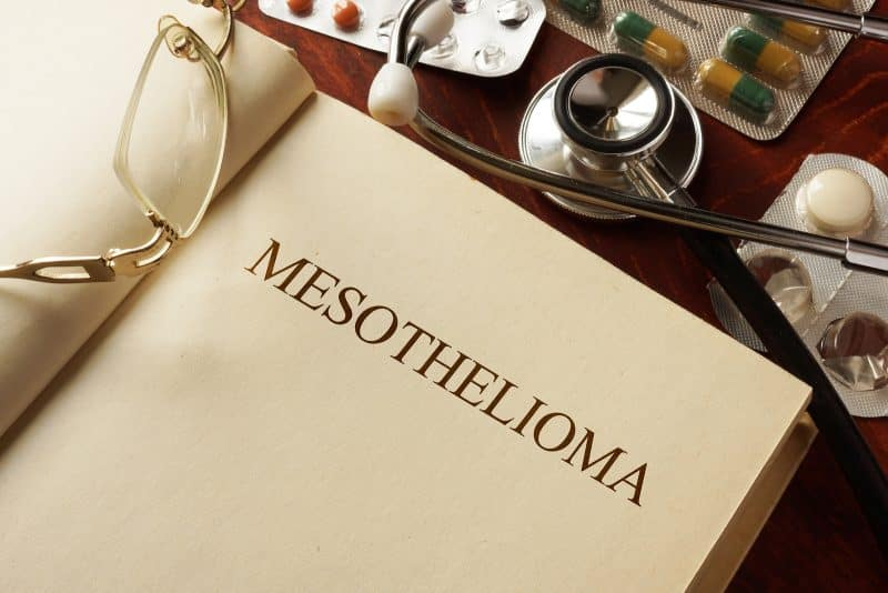 Newest Advances in the Treatment of Mesothelioma