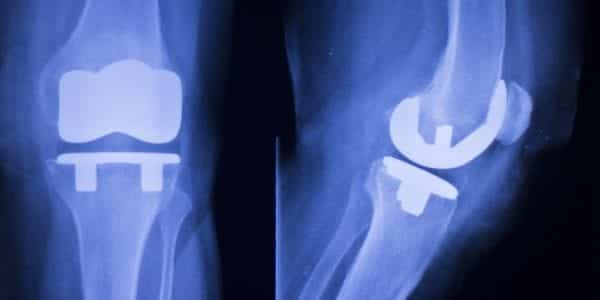 Attune Knee Implants & Complications