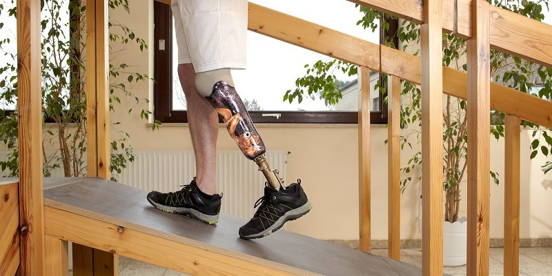 Prosthetic Limbs and the Future of Personal Injury Cases