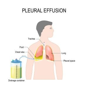 Pleural Effusion fluid on lungs